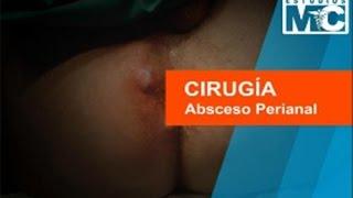 Cirugía: Absceso Perianal