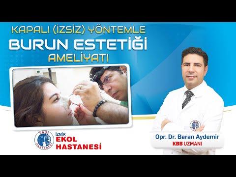 Burun Estetiği Ameliyatı Öncesi ve Sonrası ( Kapalı Yöntem) - Op.Dr.Baran Aydemir - İzmir Ekol Hastanesi