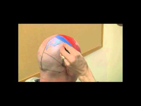 Cerebrum - In this video we describe all the different areas of the cerebrum and their functions.