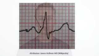 PR Interval(measured from beginning of P to beginning of QRS in the frontal plane)Normal: 0.12 - 0.20sShort PR: less than 0.12s---------------------------------------------Watch ECG The P Wave HD........http://goo.gl/7dbwjzWatch ECG P-R Interval HD.........http://goo.gl/Pl0guwWatch ECG QRS complex HD......http://goo.gl/cKUV3LWatch ECG The T Wave HD.........http://goo.gl/t5qhreWatch ECG The U wave HD ........http://goo.gl/HX5lMp---------------------------------------------SUBSCRIBE and LIKE---    http://goo.gl/c8vHHgBest Medical Books Link Below-----   http://goo.gl/XHvpZABest Medical Instrument Link Below-----   http://goo.gl/pW1PZt----------------------------Find us on Facebook :https://www.facebook.com/groups/354791764704980/https://www.facebook.com/Medicalvideosfordoctorshttps://www.facebook.com/freemedicaltextbooksJoin Our Forum: http://www.medicalbook.org