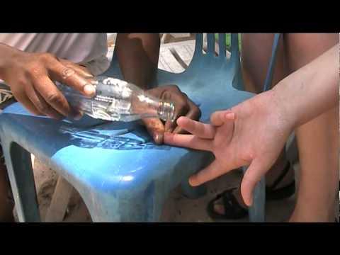Удаление иглы морского ежа на пляже в Таиланде