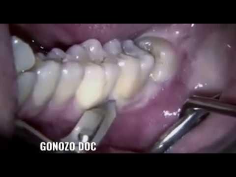 Extraction Chirurgicale De Dent De Sagesse.