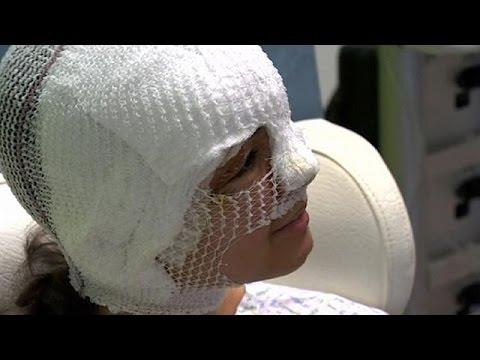 Η συγκλονιστική μαρτυρία μιας 20χρονης που τραυματίστηκε στις Βρυξέλλες
