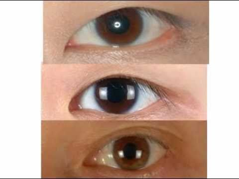 Asian Eyelid Surgery – Blepharoplasty in San Francisco – Dr. David Kim