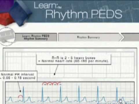 pals - http://www.surefirecpr.com Do you need to take a PALS class coming up? If so, take an American Heart Association online class to help you with ECG / EKG rhyt...