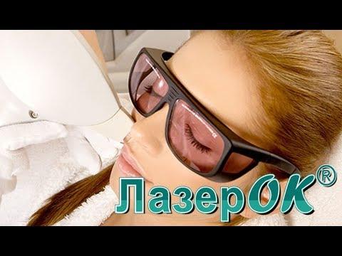 Видео Лазерная эпиляция верхней губы (салон ЛазерОК)