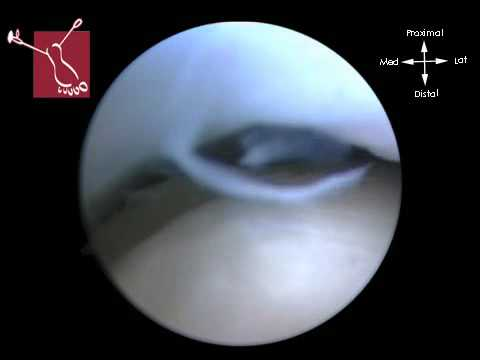 Arthrosurface Talus implant Second look arthroscopy 90% covered