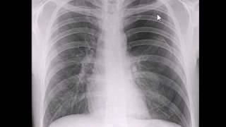 Chest X-ray, Pneumothroax