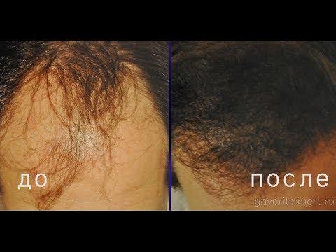 Как Бороться с Выпадением Волос? Хирургический (Лоскутный) Метод Лечения Облысения. Говорит ЭКСПЕРТ.