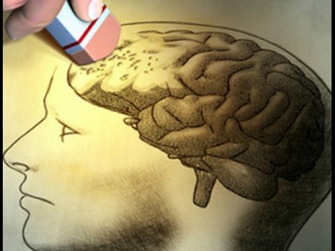 ויטמינים לאלצהיימר, איך למנוע את ניוון המוח שלנו ולשפר את תפקודו