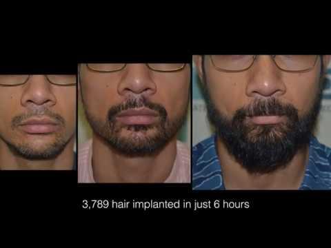 Beard styles - Stunning Result of Beard Restoration at DHI