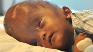 Swollen Head Baby Leaves Hospital After Successful Surgery