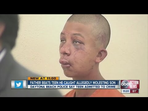 beats - A father beats a Daytona Beach teen he caught allegedly molesting his son.