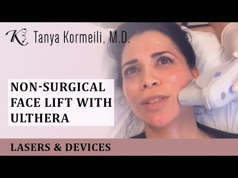 Non-surgical Face Lift with Ulthera