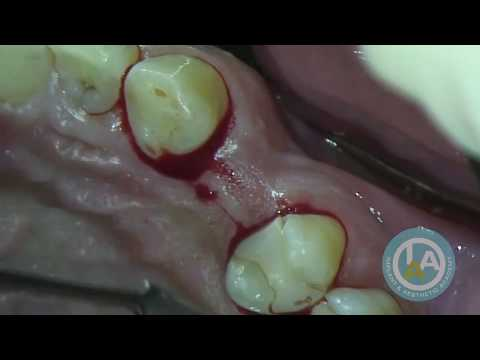 Surgical Soft Tissue Development for a Basic Implant - Dr Howard Gluckman