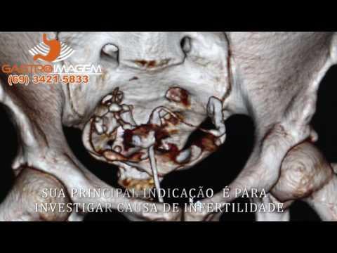 Histerosal Pingografia