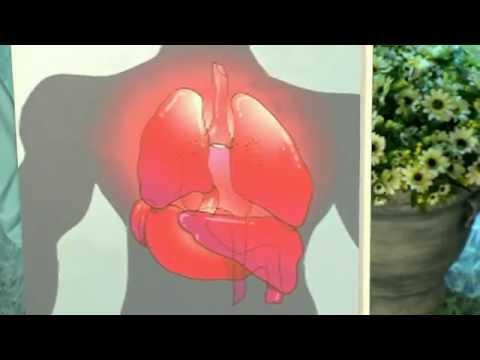 Синдром Картагенера. Кашляющее бесплодие