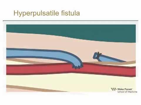 Physical Examination of Arteriovenous Fistula