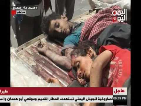 اليمن اليوم 21 11 2016