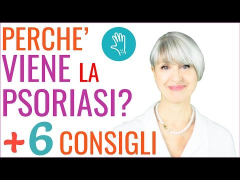 le cause della psoriasi - 6 consigli per le macchie della pelle