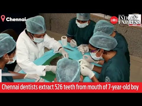 Ιατρικό σοκ: Αφαίρεσαν 525 δόντια από το στόμα ενός παιδιού (Video)