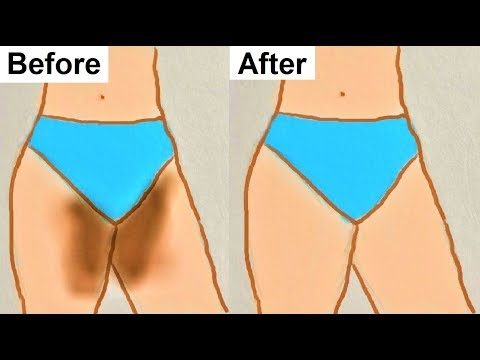 How to Lighten Your Private area Naturally At Home, Lighten Dark Private Body Parts