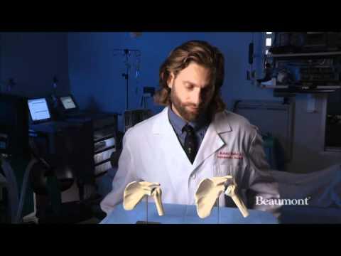 Shoulder replacement surgery | Beaumont Orthopedics