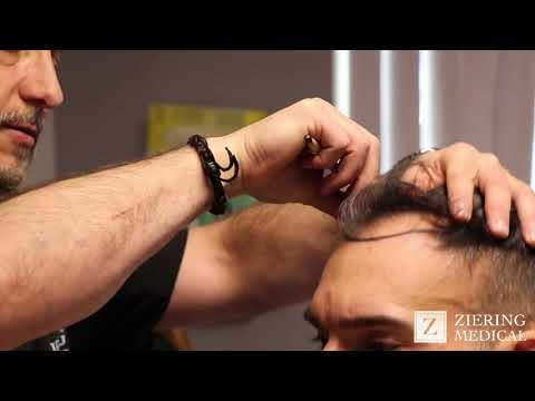 Hair Transplant Surgery In New York City At Ziering Medical
