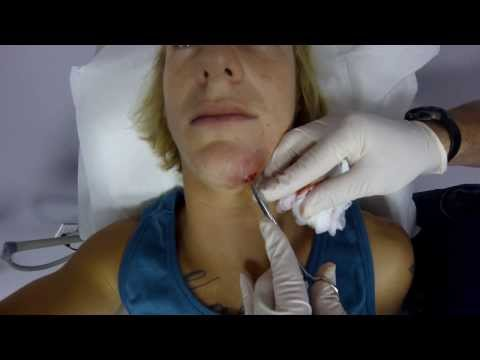 how to drain mrsa sore