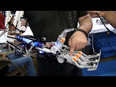 Man Builds Arm Out Of LEGOs