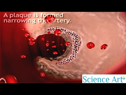 How Atherosclerosis Develops? - Process of Atherosclerosis Plaque Formation Animation - Pathology