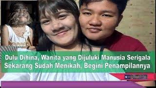 Video Dulu Dihina, Wanita yang Dijuluki Manusia Serigala ini Sekarang Sudah Menikah, Begini Penampilannya MP3, 3GP, MP4, WEBM, AVI, FLV Februari 2018