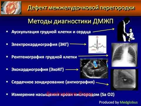 ДМЖП или дефект межжелудочковой перегородки.AVI