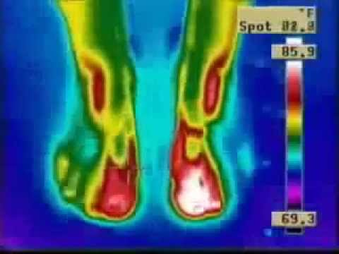 Time lapse Thermography using Nikken Magsteps Magnetic insoles