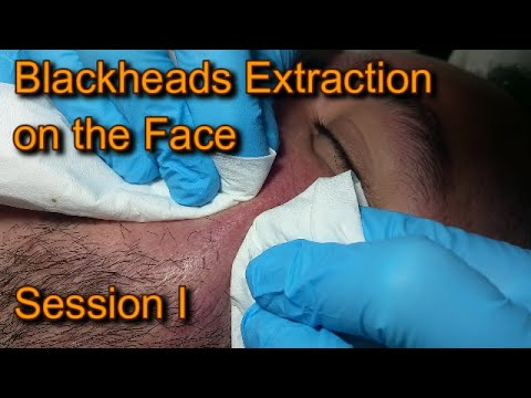 Blackhead Extraction on the Face