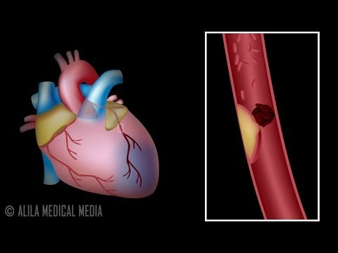 Myocardial Infarction and Coronary Angioplasty Treatment, Animation.