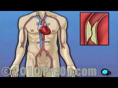 CABG off-pump