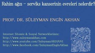 Rahim ağzı - serviks kanserinin evreleri nelerdir? - Prof. Dr. Süleyman Engin Akhan