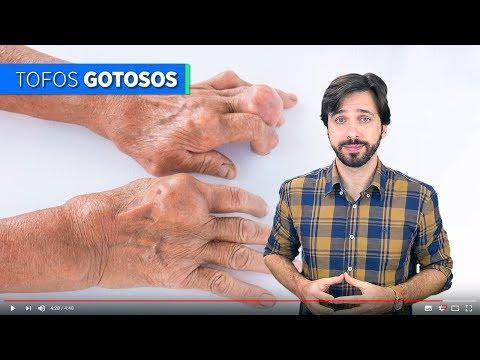 Você sabe o que é a doença Gota?