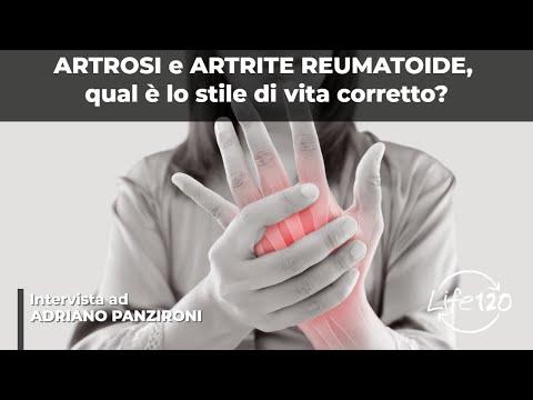 cause dell'artrosi e artrite remautoide e come curarle senza farmaci