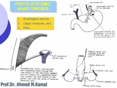 40  Abdomen   Porto systemic anastomoses