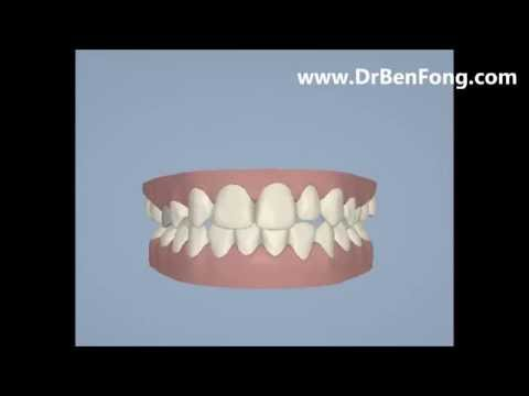 Invisalign Results for Noorhan A.| Before & After | www.invisalignresults.ca