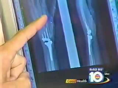 Arthritis and Implants for Hands Dr. Alejandro Badia Hand Surgeon