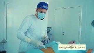 Липофилинг губ, скул и носогубных складок и клинике Gold Laser