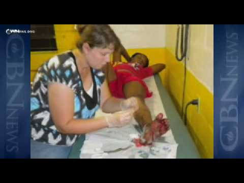 Miracles in Haiti – CBN.com