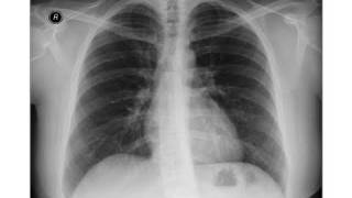 Pneumoperitoneum - Chest X-ray