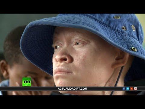 Los blancos negros – Documental de RT sobre albinos en África