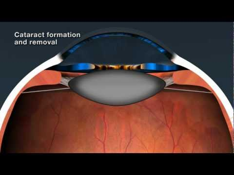Cataract Removal and Intraocular Lenses