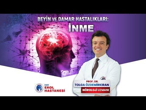 Beyin Damarı Tıkanıklığı: İnme