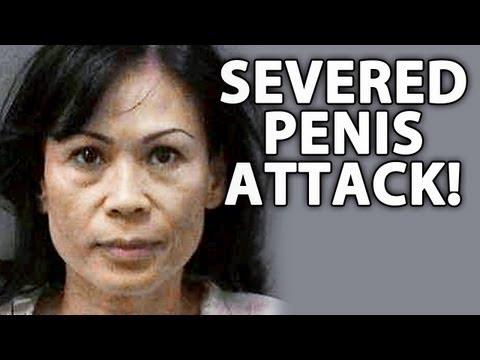 Crazy Woman Cuts Off A Man's Penis!
